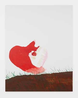 Dreamy Bloody Head with Bad Teeth on Grassy Mound by Calvin Marcus contemporary artwork