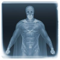 Examination of Superman by Nick Veasey contemporary artwork print