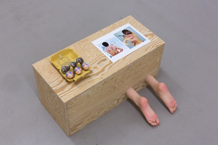 Maryam Jafri, Depression, from the series 'Wellness-Postindustrial Complex' (2017). Wood, silicone feet, acupuncture needles, glass cupping equipment, photograph, paper, egg carton. Courtesy the artist and Laveronica arte contemporanea.