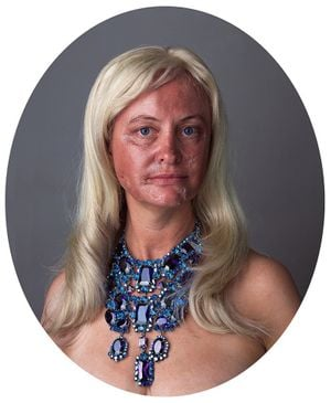 Self-portrait / Portrait with Face Peel by Yvonne Todd & Liz Maw contemporary artwork